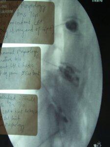 Typical anterior lumbar interbody fusion (ALIFs) discogram