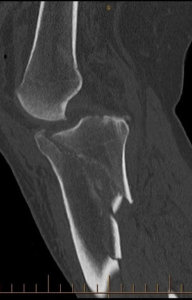 Tibial Plateau Fracture X-Ray