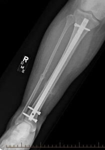 A post-op x-ray of a tibial shaft fracture.